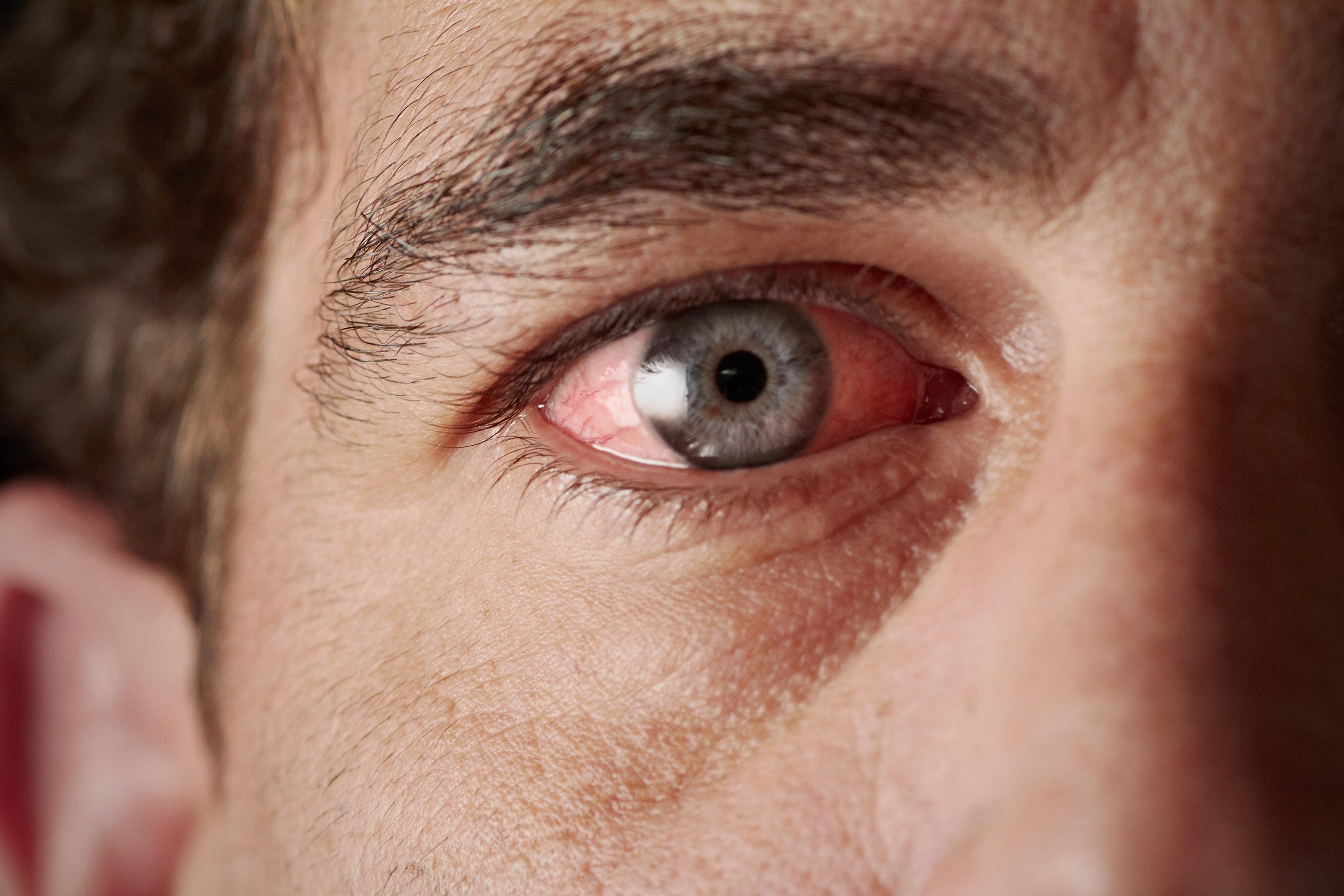 vörös foltok lehúzódnak a szem alatt pikkelysömör és ízületek kezelése