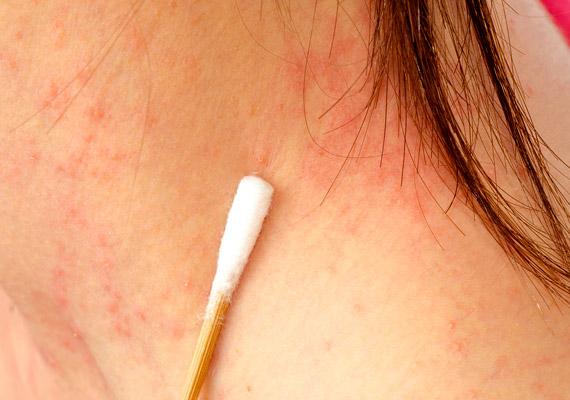 viszketés és vörös foltok a fején, mint kezelni összeesküvések pikkelysömör kezelése