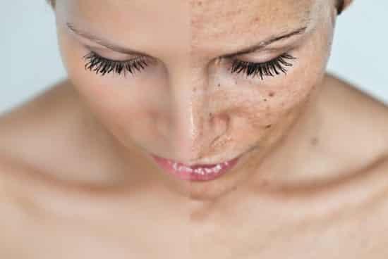 fehéríti a bőrt a vörös foltoktól)
