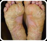 nizoral pikkelysömör kezelése kerek, pikkelyes vörös foltok a testen