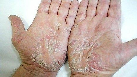 Bőr sapka krém psoriasis ár