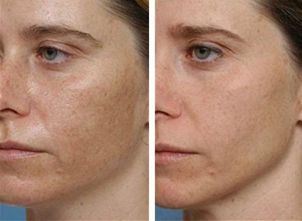 hogyan lehet eltávolítani a homlokán a vörös foltot)