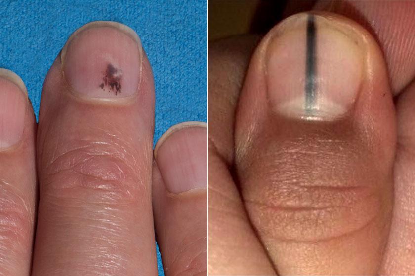 vörös foltok sütnek a kézen pikkelysömör kezelése a baikalon