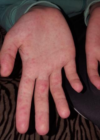 vörös foltok az ujjakon és a lábakon)