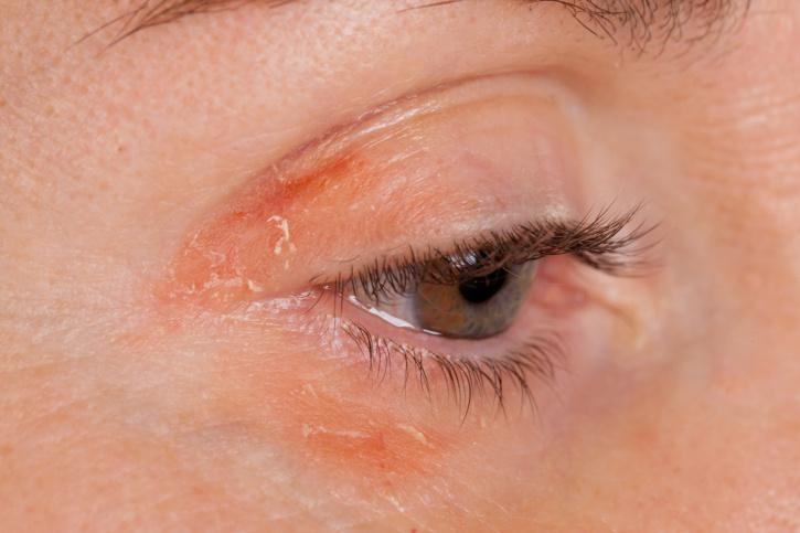 vörös száraz folt az arcon a szem alatt