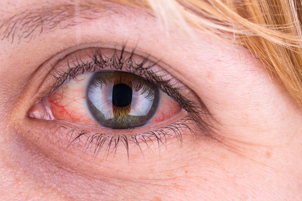 van egy piros folt a szem alatti bőrön)