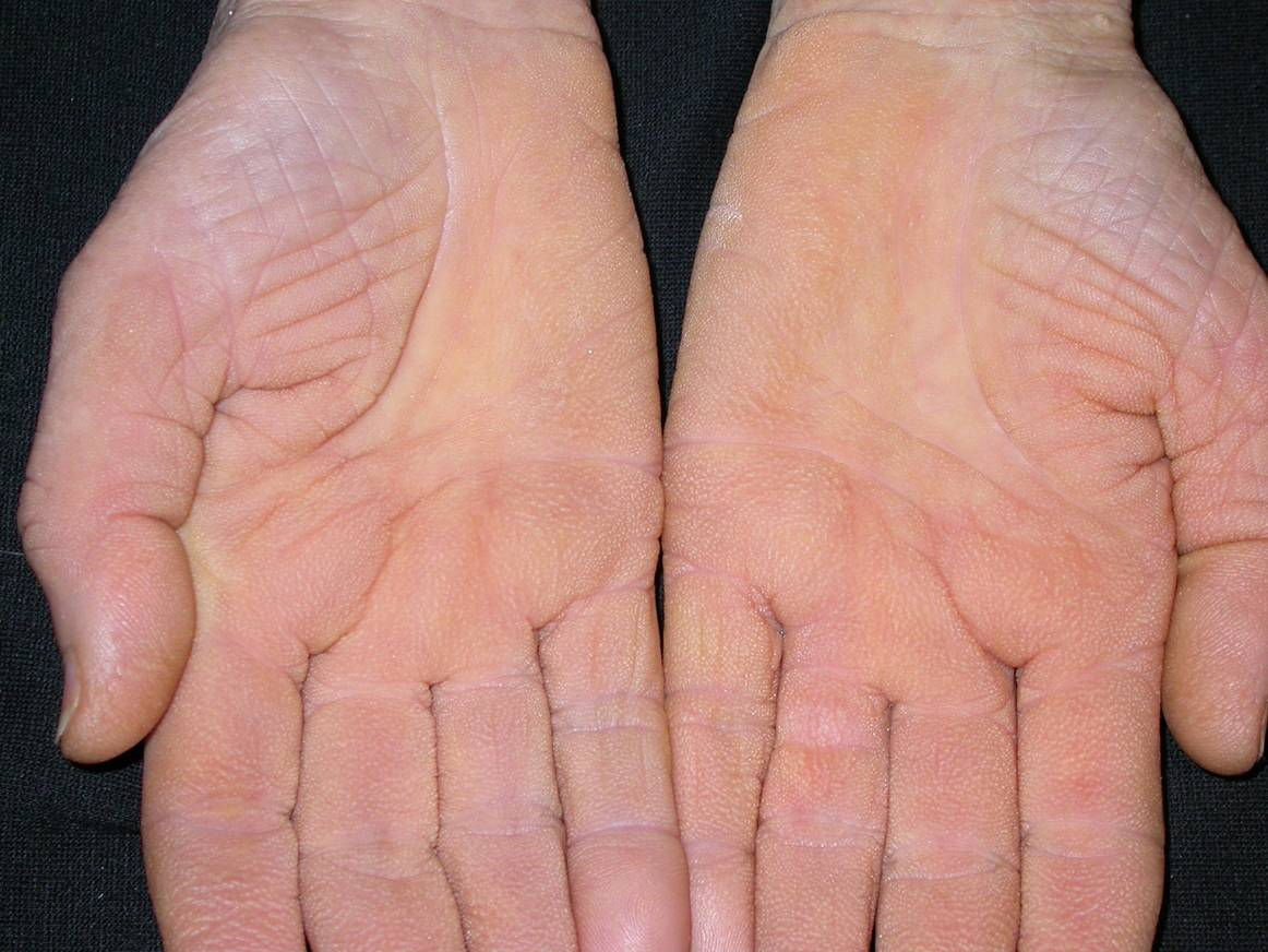 Keratosis pilaris: grízes dudorok a bőrön