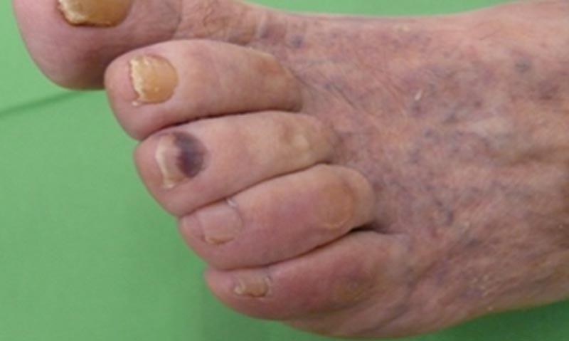 egy cukorbetegnek piros foltok vannak a lábán vörös foltok eltávolítása az arcon vélemények