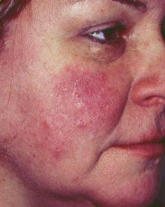 vörös foltok az arcon onkológia)
