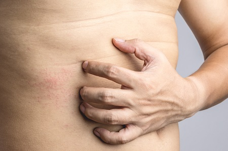 Gyomorhurut tünetei és kezelése