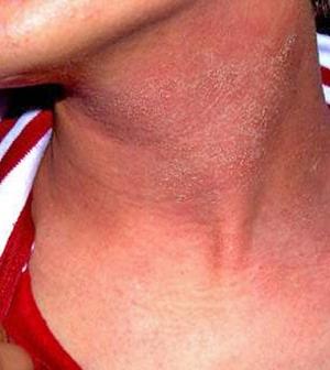 vörös nyak foltok kezelése népi gyógymódokkal)