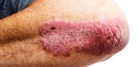 vörös viszkető foltok a nemi szerveken vörös foltok a testen egy fényképpel lehúzódnak