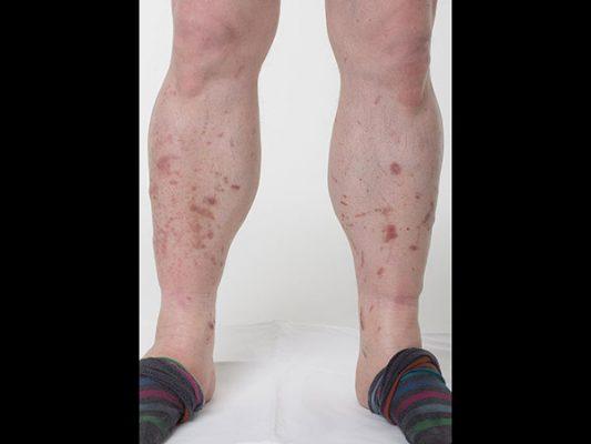 egy cukorbetegnek piros foltok vannak a lábán piros folt a fenéken viszketés fotó