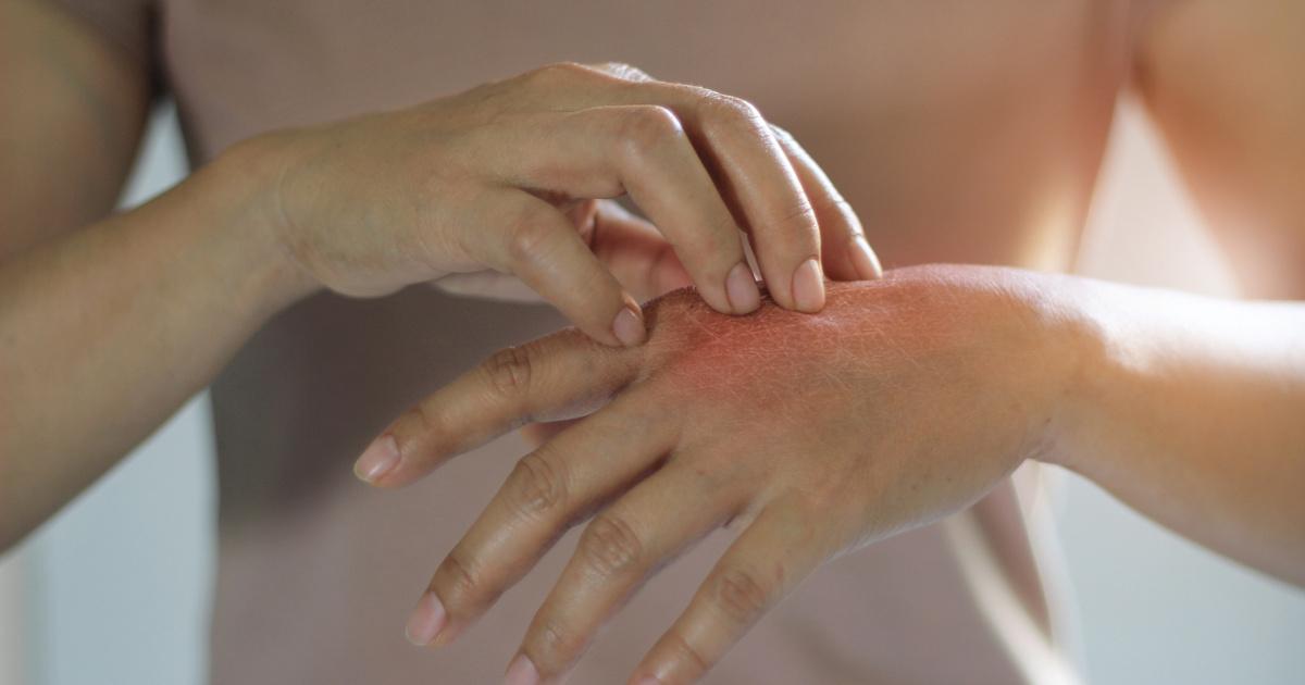 mit kell tenni, ha piros foltok jelennek meg a kezeken)