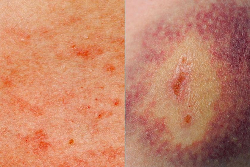 Piros foltok jelennek meg és terjednek a testben.