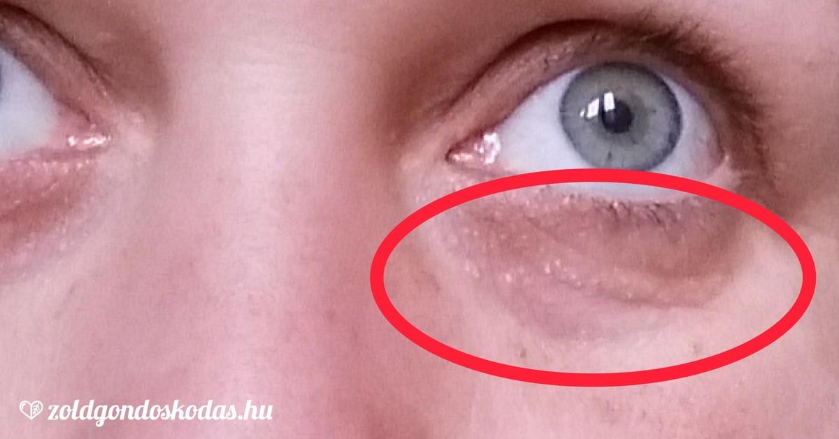 vörös foltok az arcon a szem alatt)