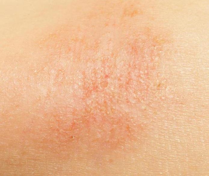 miért száraz a bőr és vörös foltok