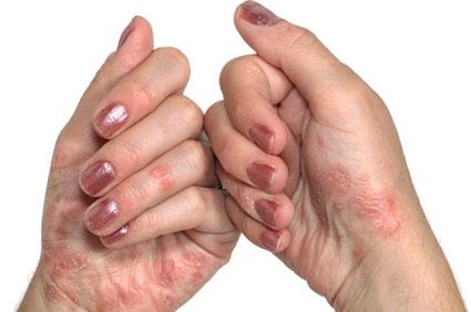 fejbőr psoriasis kezelési rend
