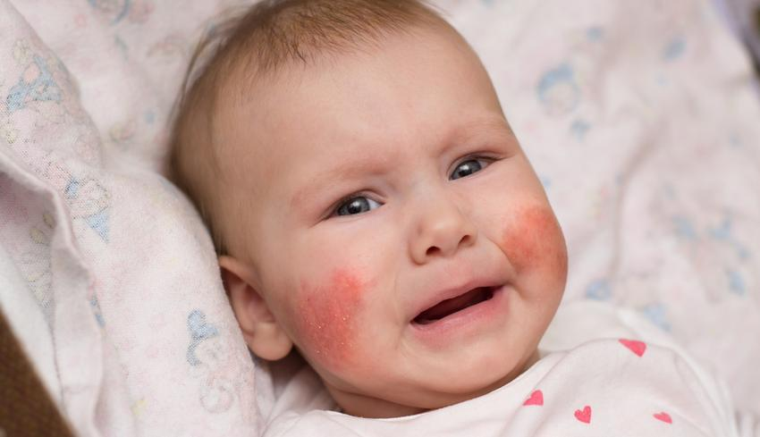 piros foltok a fénykép arcán viszketnek