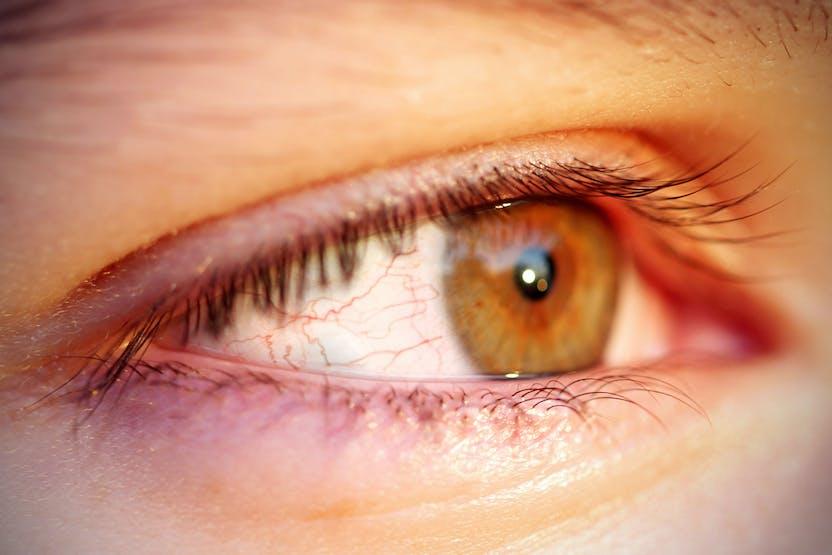 vörös folt a szem kezelés alatt