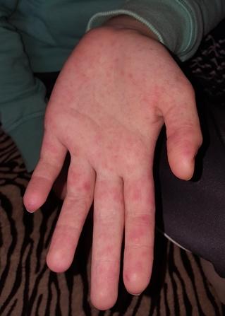 a jobb kezén piros folt jelent meg