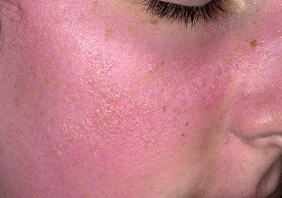 Psoriasis arc fotó
