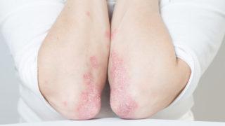 a lábakat vörös foltok és viszketés borítja