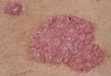 peptidek pikkelysömör kezelésére