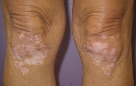 libadombok és vörös foltok jelentek meg a lábakon öregségi foltok az arcon vörös foltok