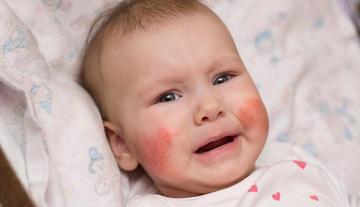 miért sírva borítja el az arcát vörös foltok?