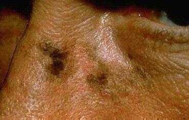 a bőrön lévő foltok vörösek és forrók