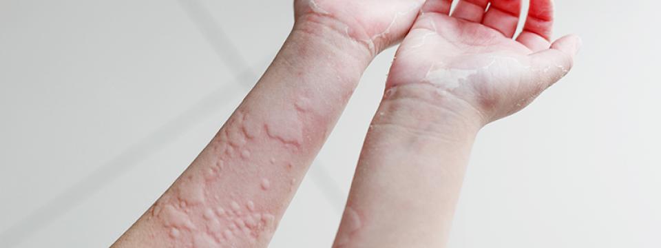 a bőrt vörös foltok borítják, mint fürdés után