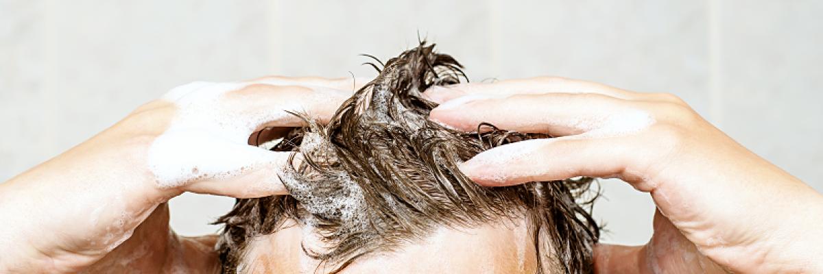 a fejbőr pikkelysömörének súlyosbodásának kezelése
