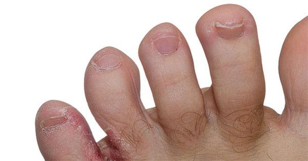 a lábán vörös szegélyű folt