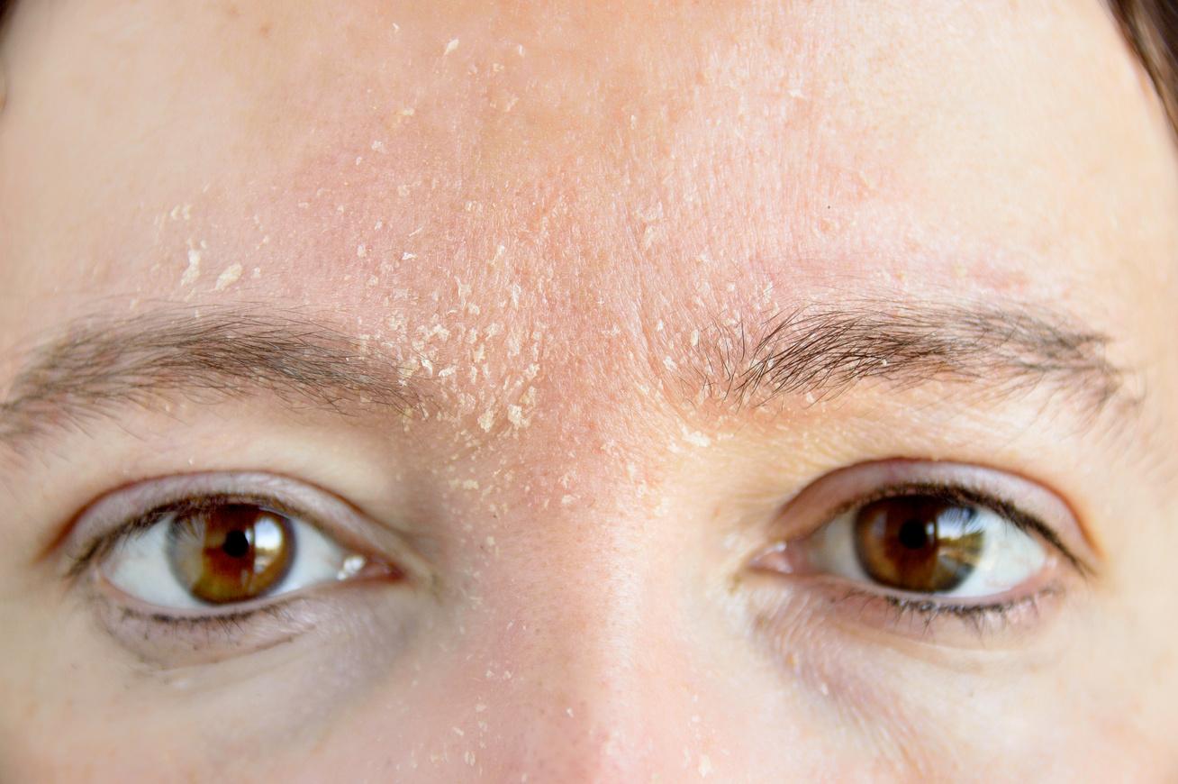 a szem alatt egy vörös folt hámlik le a fotóról a pikkelysömör kezelését wangából kezeljük