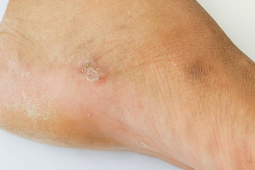 amikor vörös foltok jelennek meg a lábakon, mit kell tenni vörös foltok a bőrön hepatitis C-vel