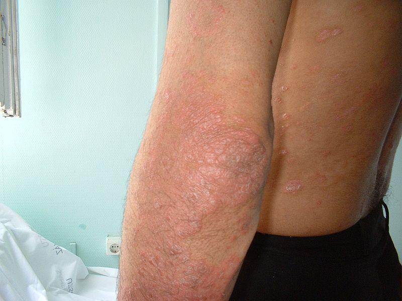 pikkelysömör kezelése novogireevo Solcoseryl pikkelysömör kezelése