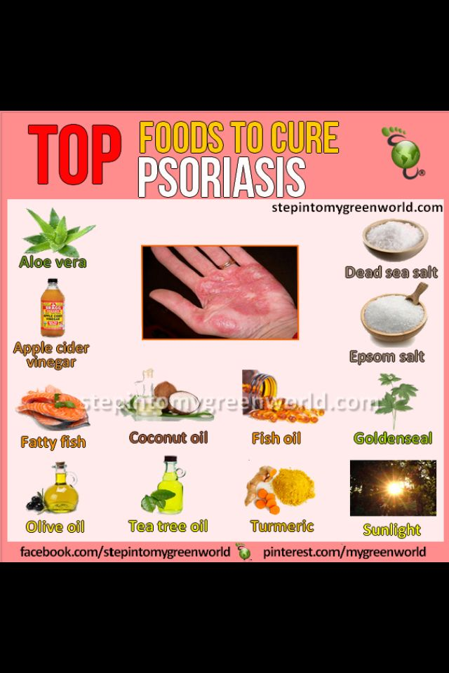 anogenitalis psoriasis kezels