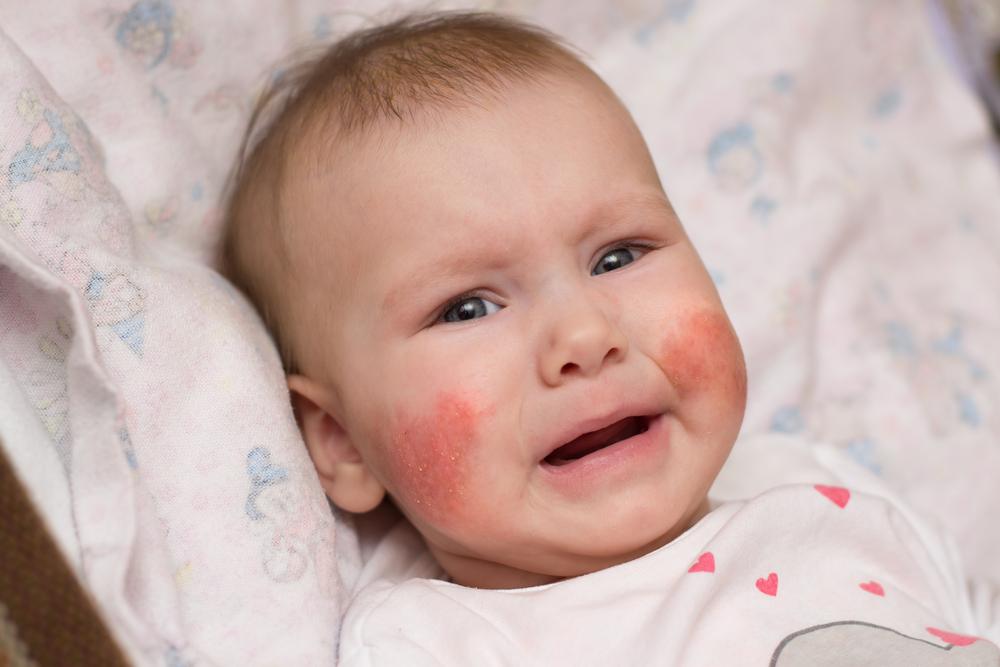 az arcán vörös foltok pikkelyesek és viszketőek