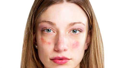 az arcát vörös kis foltok borították