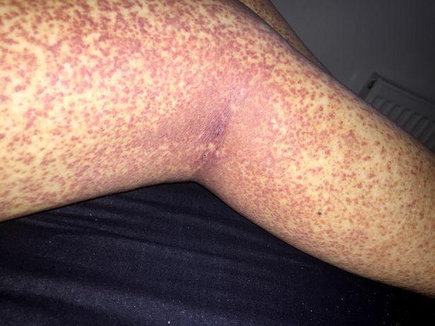 az egyik piros folt kijött a lábán