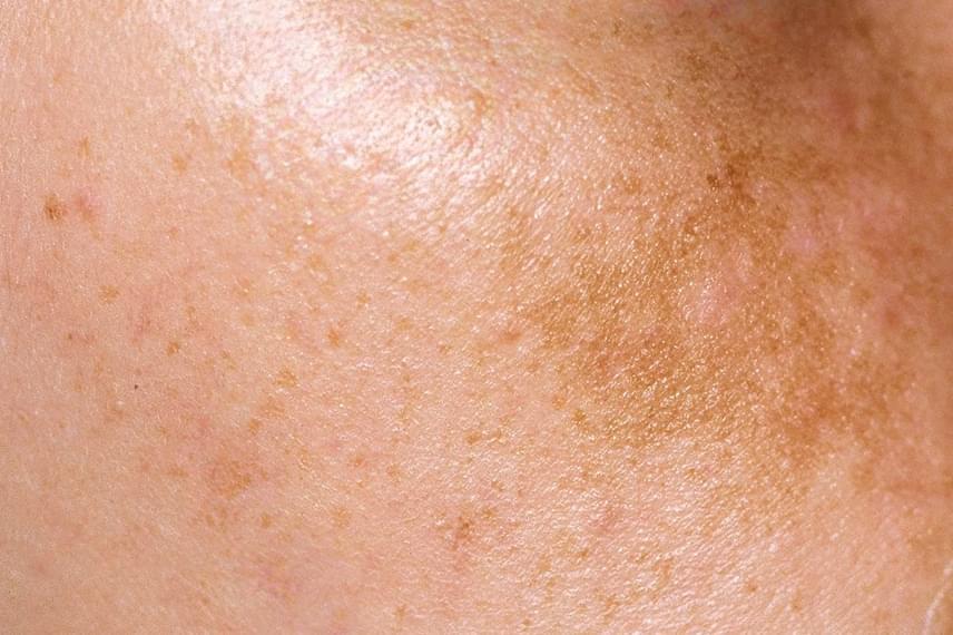 vörös foltok jelennek meg a bőr megérintésekor)