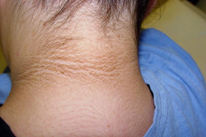 hogyan lehet eltávolítani a vörös foltokat a nyakról)