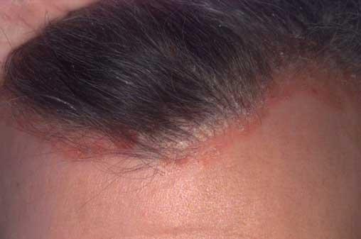 psoriasis fej fotó kezdeti szakaszában a kezelés