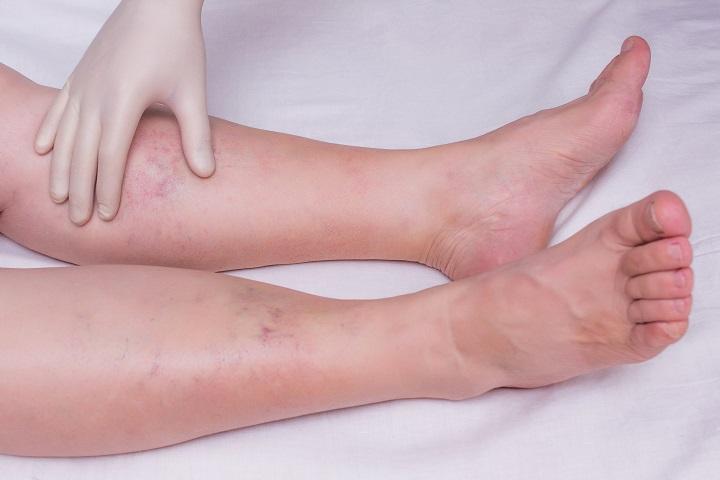 vörös foltok a lábakon és a térd fájdalma)