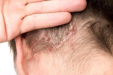vörös foltok a fején és a korpásodás kezelésének fényképe)