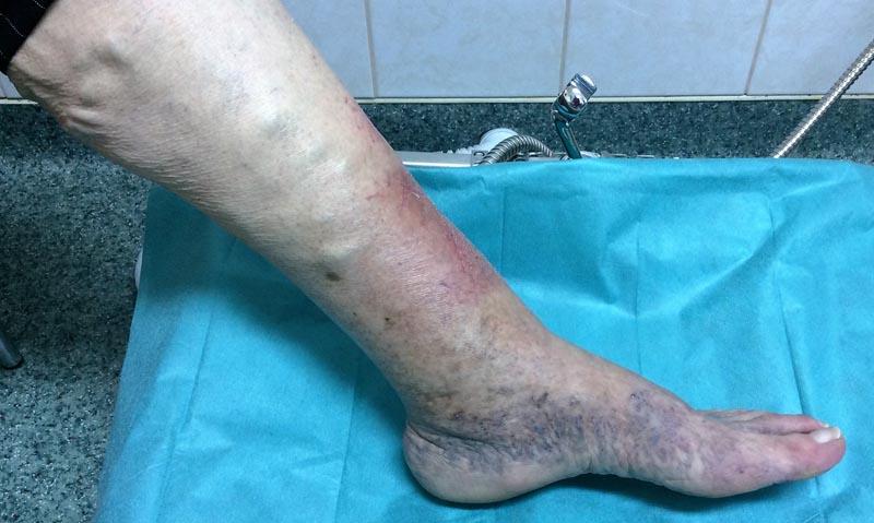 az alsó lábszáron viszkető vörös folt)