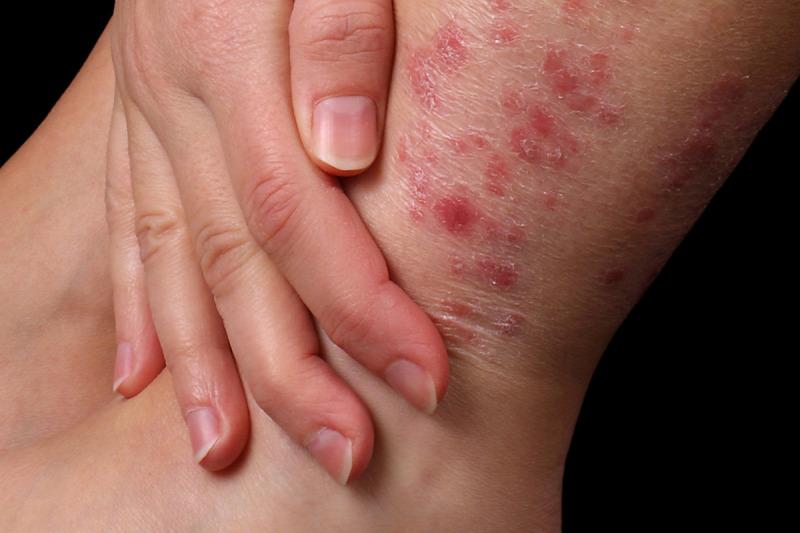 hogyan kell kezelni a kez pikkelysömörét vörös foltok az arcon és a nyakon mi ez
