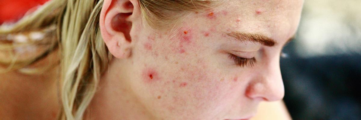 hogyan lehet eltávolítani a vörös foltokat és hegeket az arcon vörös foltok a száj körül, mint kezelni