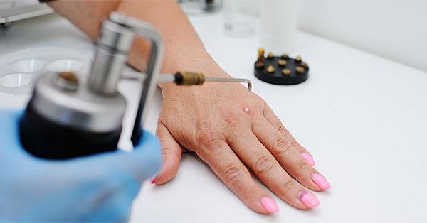 hogyan kell kezelni a pikkelysmrt a kezeken fotó